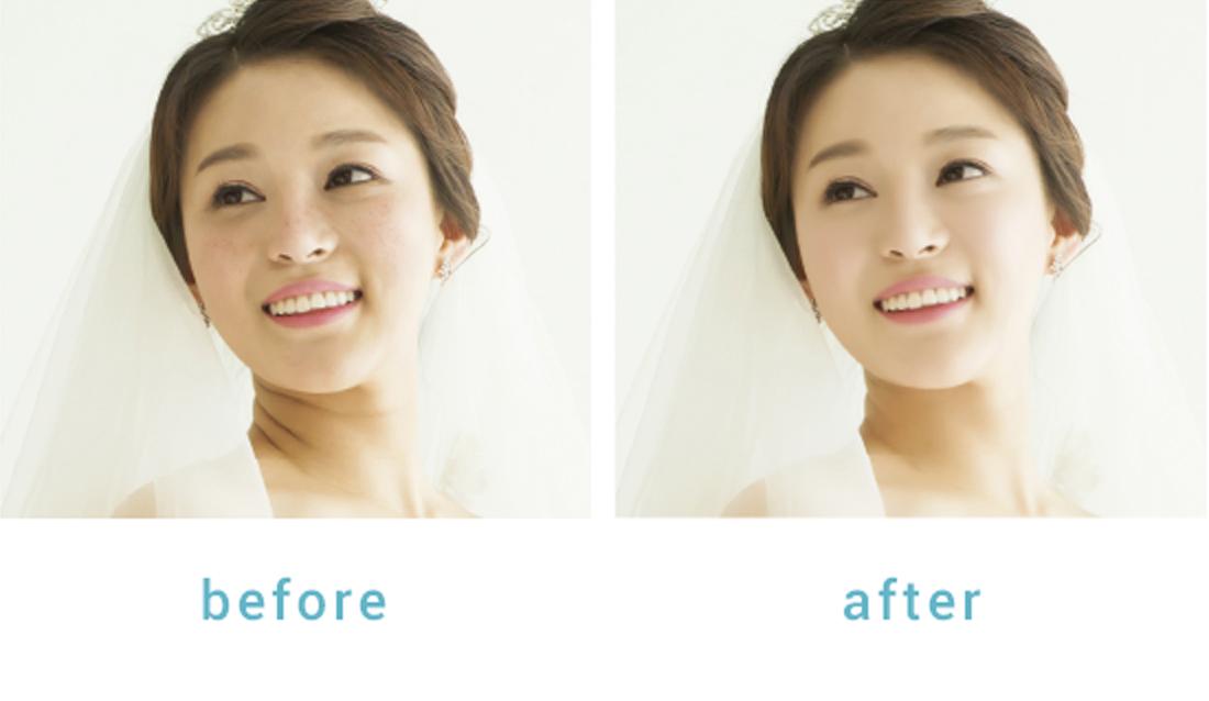 PhotoBridge®の美肌加工オプション